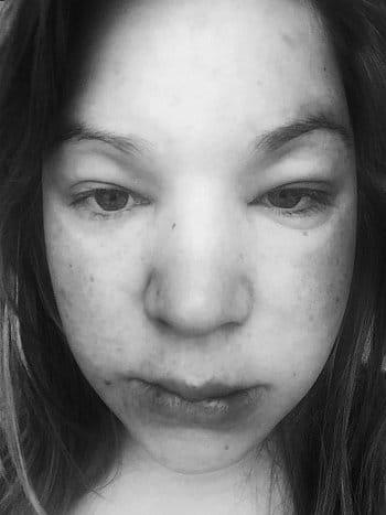 Preeclampsie - autoportrét